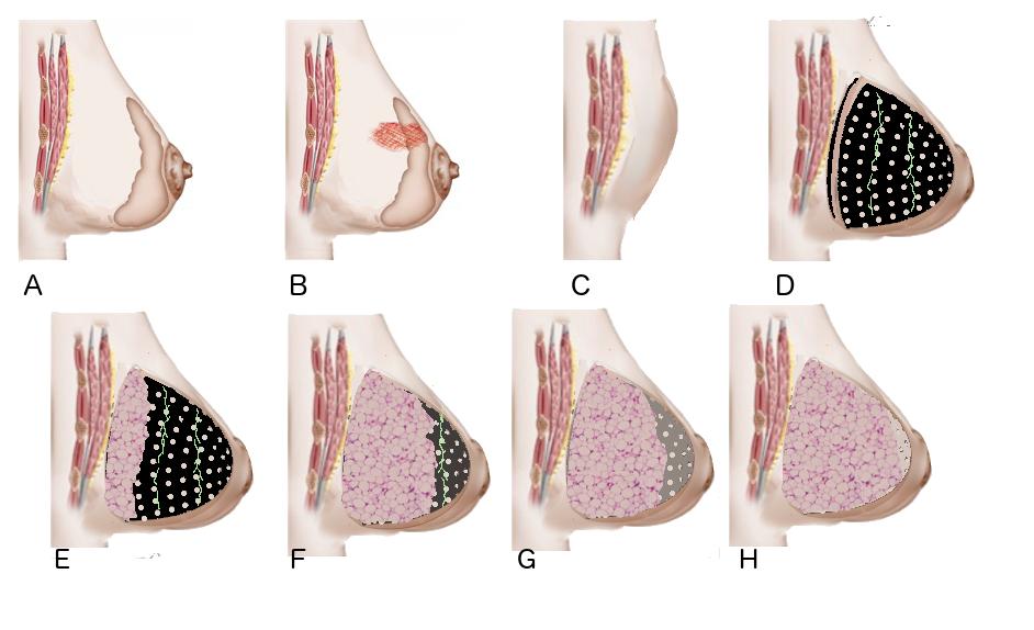 prothèse mammaire Mat(t)isse